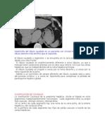 Anatomía y Segmentación Hepática