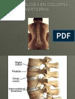 15247996-imagenologia-en-columna-vertebral-101215230221-phpapp01.ppt