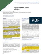 Avances en la fisiopatología del edema