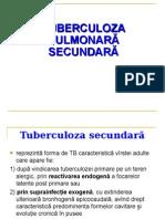2 Tuberculoza Secundara Rom 2015 (1)