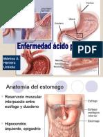 enfermedad-acido-peptica