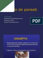 Método Ponseti