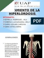 Tratamiento de Hiperlordosis