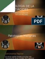 patologia de la tiroides 5