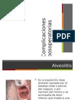 Exodoncia. Complicaciones postoperatorias