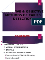 Subjective & Objective Methods of Caries Detection