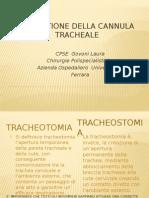 Govoni Gestione Della Cannula Tracheale (1)