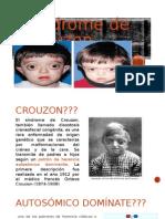 sindrome de crouzon