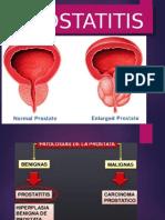 Presentacion de Prostatitits