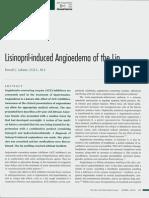 angioedema 2