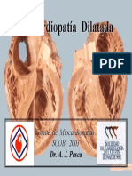 Dilatacion miocardio