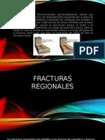 2expo Fracturas Version Quemados