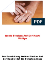 Vitiligo Behandlung, Vitiligo Lichttherapie, Vitiligo Behandlung Berlin, Weisse Flecken Haut