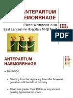 Antepartumhaemorrhage