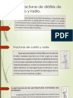Fractura de Diafisis Cubito y Radio, Galiazi y Monteggia