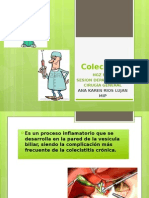 Colecistitis Cx