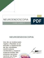 Neuroendoscopia