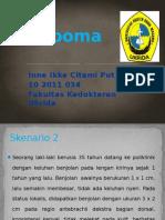 PBL Lipoma