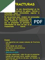 Fracturas y Tipos de Fraccturas