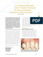 34. Treatment of gingiva recession with a modified _Tunnel_ technique.pdf
