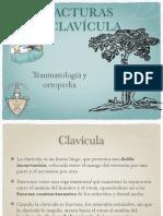 Fx Clavicula