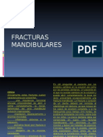 fracturas de la mandibula 1.ppt
