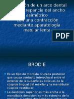 Presentacion Brody