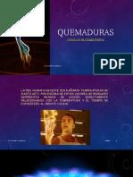 QUEMADURAS