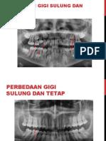 perbedaan radiografi gigi sulung & tetap