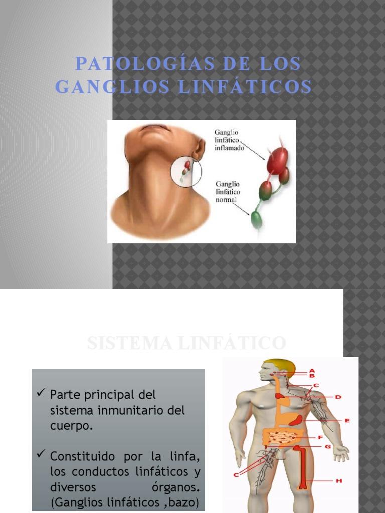 PATOLOGÍAS DE LOS GANGLIOS LINFÁTICOS