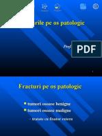 13. Fracturi Pe Os Patologic
