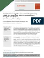 ATELECTASIA 2013.pdf