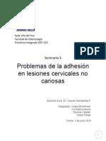 Problemas de Adhesión en LCNC