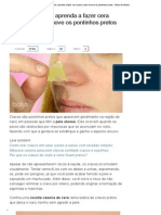 Artigo - Cravos Na Pele_ Aprenda a Fazer Cera Caseira Que Remove Os Pontinhos Pretos