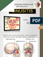 Sinusitis Jc 2015