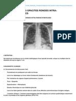 Medespace.fr-le Diagnostic Des Opacites Rondes Intra-parenchymateuses