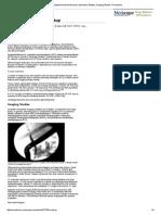 Cholangiocarcinoma Workup_ Laboratory Studies, Imaging Studies, Procedures