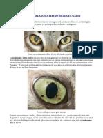 Melanosis y Melanoma Difuso de Iris En