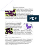 Clasificación de Las Leucemias (Reparado)