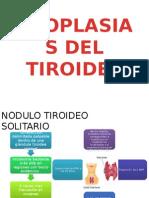 Neoplasias Del Tiroides