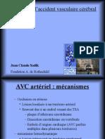 SADIK Présentation AVC Chantilly 10 Minutes