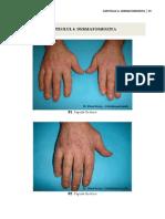 6. dermatomiozita