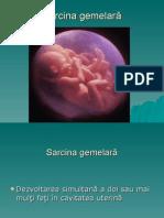 78330058-Sarcina-gemelara