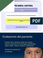Urticaria Aguda.pptx