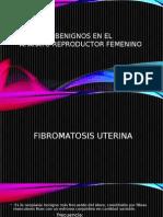 Tumores Benignos en El Aparato Reproductor Femenino