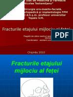 fracturile etajului mijlociu 1.ppt