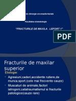 Fracturile de Maxila