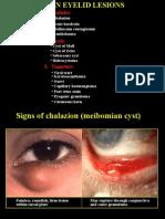 Mata Benign Eyelid Lesions(1)