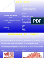 Neoplasias Del Ovario