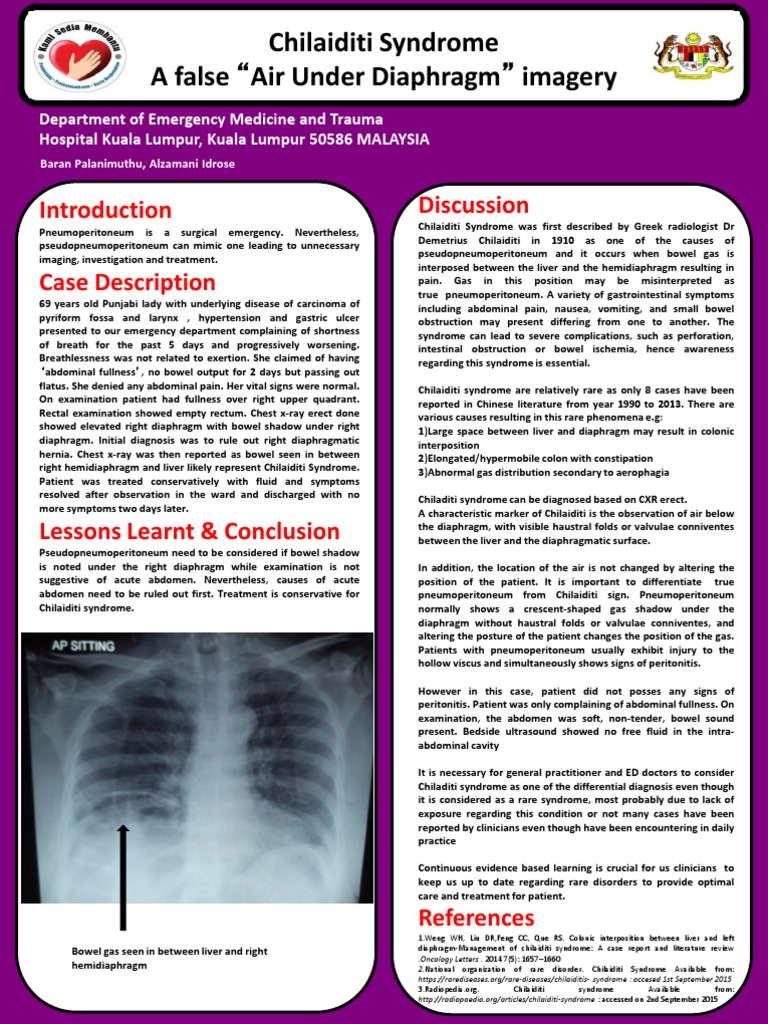 Chilaiditi Syndrome A Benign Air Under Diaphragm Digestive Diseases Medical Specialties
